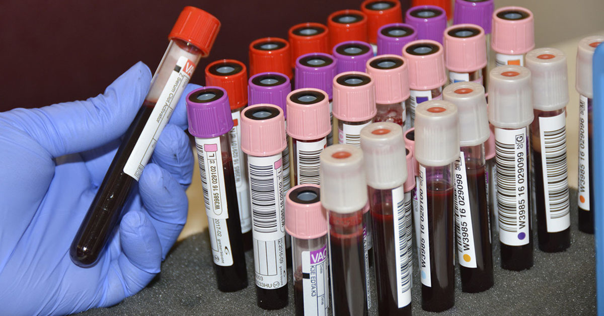 A gloved hand holding blood samples vials.