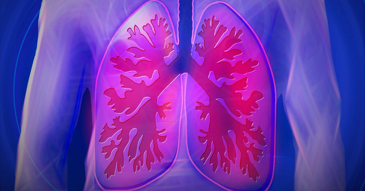 An artists illustration of lungs inside the chest.
