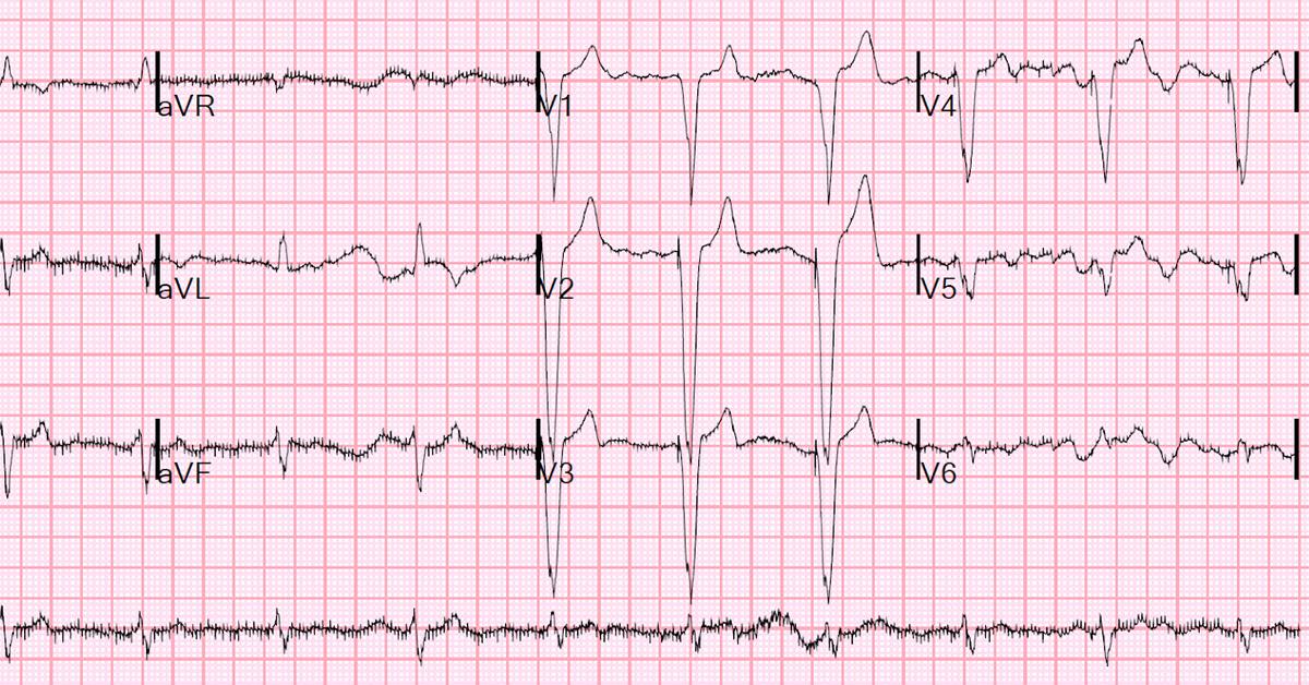 An ECG printout showing an episode atrial fibrilation.